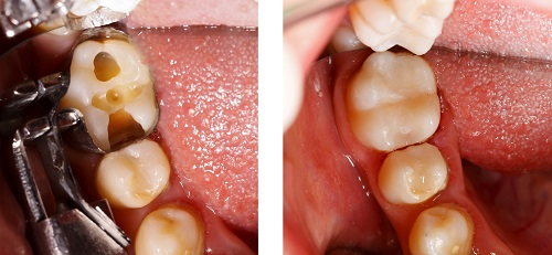 Composite Fillings at Mintie Family Dentistry.